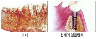 왼쪽이미지 : 고대/오른쪽이미지:현재의임플란트