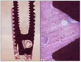 임플란트와 뼈의 부착