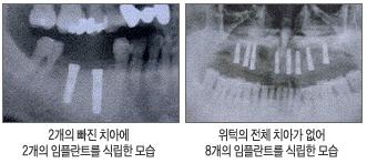 왼쪽:2개의 빠진 치아에 2개의 임플란트를 식립한 모습/오른쪽:위턱의 전체 치아가 없어 8개의 임플란트를 식립한 모습