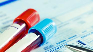 혈액종합검사